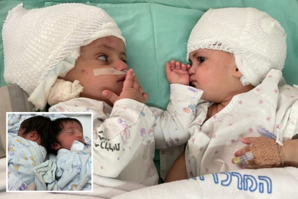 Conjoined twin sisters see one another for the primary time after being separated in 16-hour operation